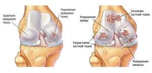 Изображение - Трещат суставы ног 9vzJcQap3V4-300x144